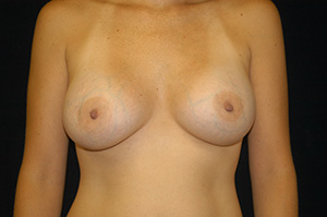 Breast Augmentation 1b