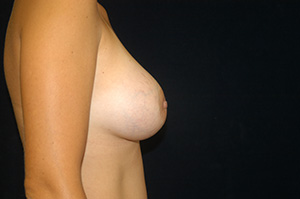 Breast Augmentation 1d