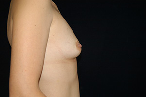 Breast Augmentation 1c