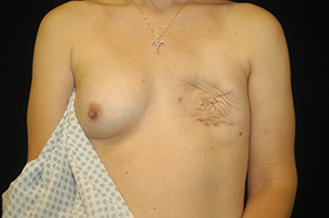 Breast Reconstruction 1a