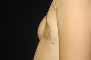 Breast Reconstruction 1c