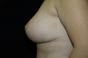 Breast Revision 1d