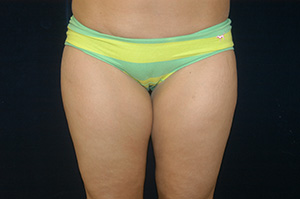 Liposuction 1a