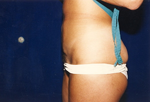 Liposuction 3b